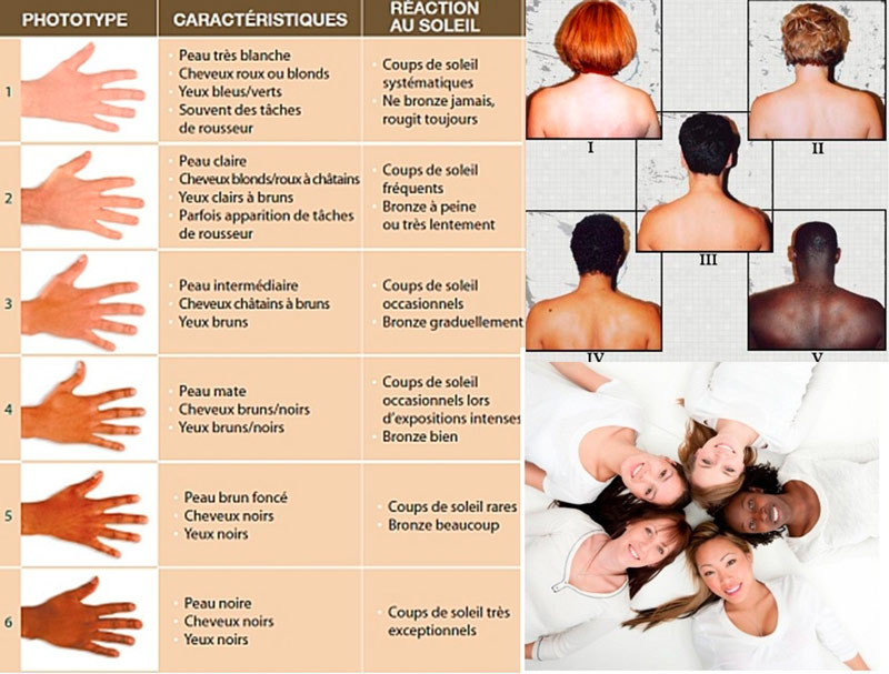 Les phototypes centre dermatologique vaucluse cavaillon - Les differents blonds ...